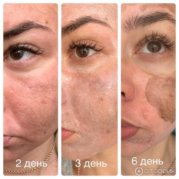 Обзор пилингов от пигментных пятен, советы по применению и рекомендации врачей-косметологов