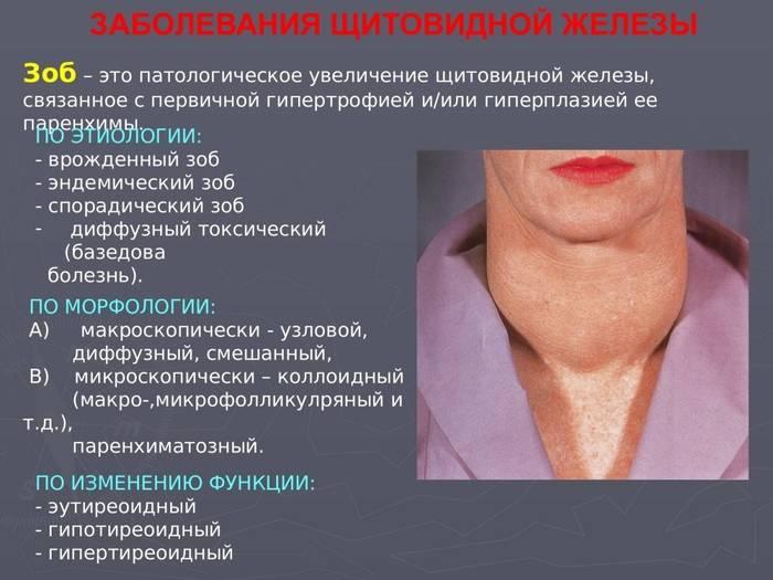 Рак молочной железы - симптомы  и лечение