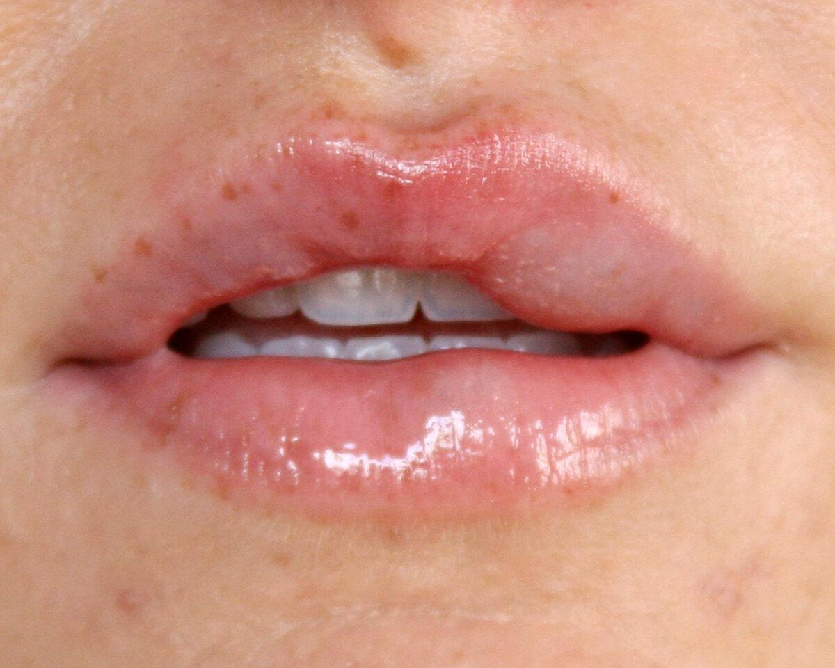 Все о последствиях и осложнениях при увеличении губ гиалуроновой кислотой
