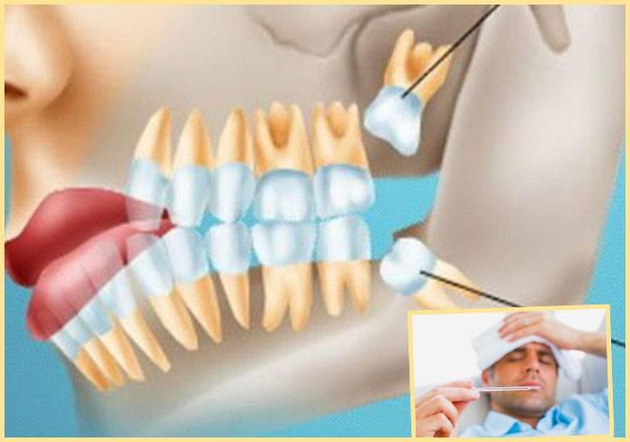Почему после удаления зуба из десны торчит кость и надкостница