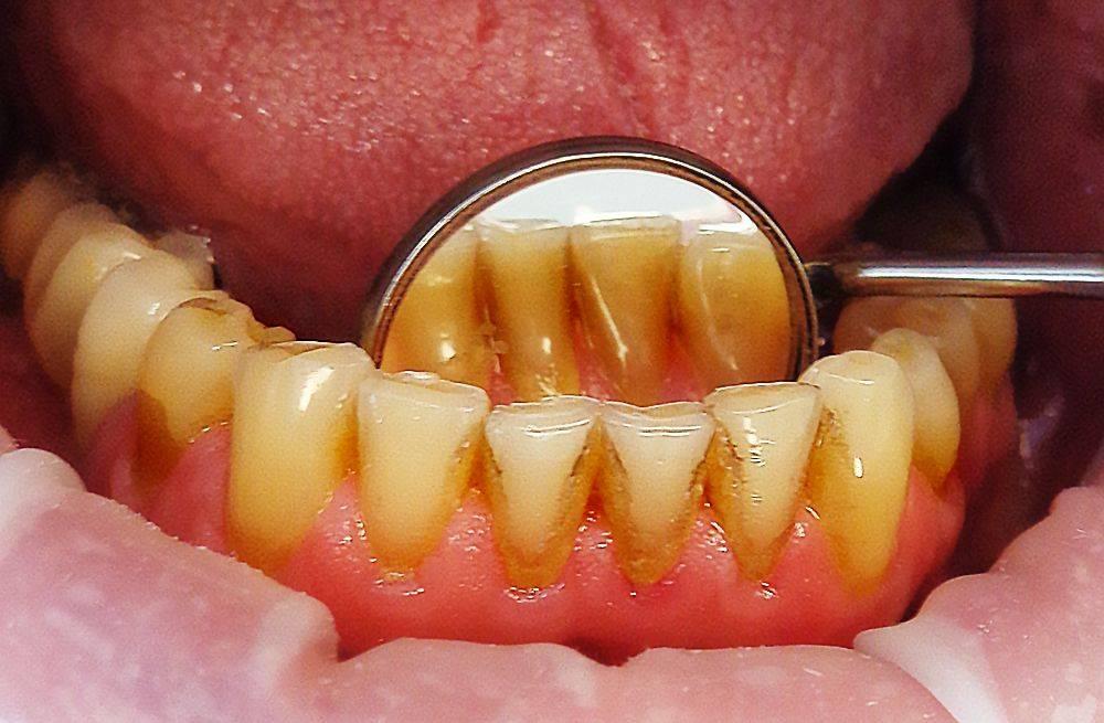 О том, что такое гингивит расскажет практикующий врач стоматолог