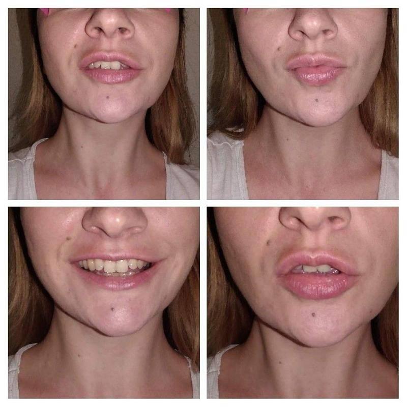 Лифтинг губ нитями или филлерами: что выбрать