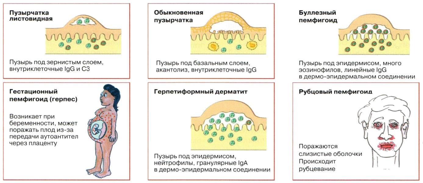 Пузырчатый дерматит — лечение, симптомы, причины