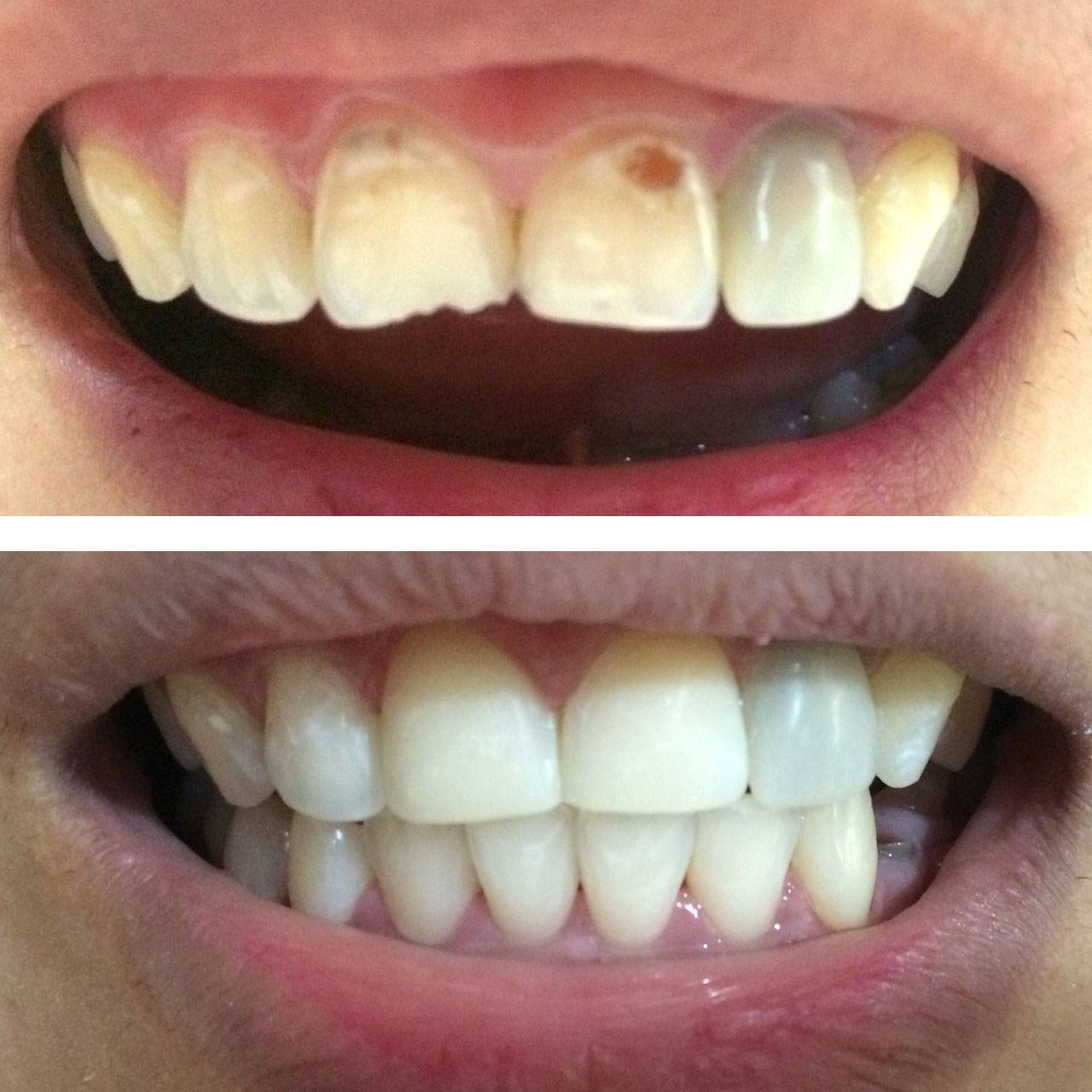 Передние зубы (несколько) очень маленькие. возможно ли их нарастить и не повлияет ли это на прикус?