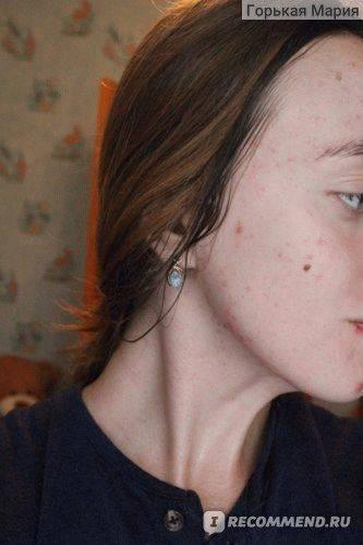 Лечение прыщей и прочих изъянов на коже с помощью дегтярного мыла