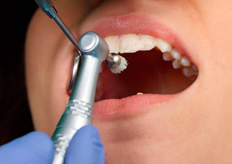 После чистки зубов ультразвуком нельзя – профимед