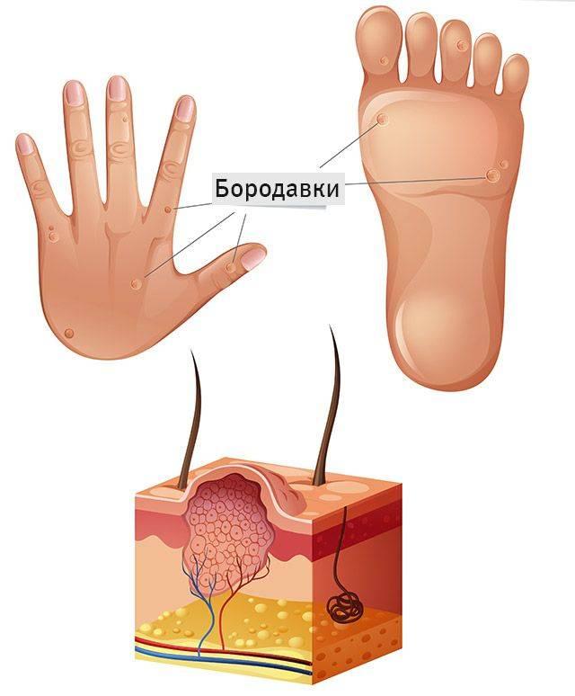 Рабочие способы борьбы с мозолями на пальцах рук