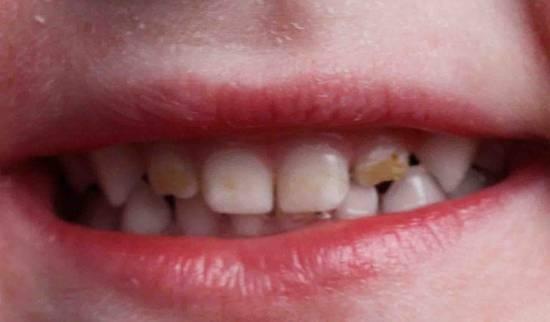 Почему у ребенка чернеют зубы и как это лечить