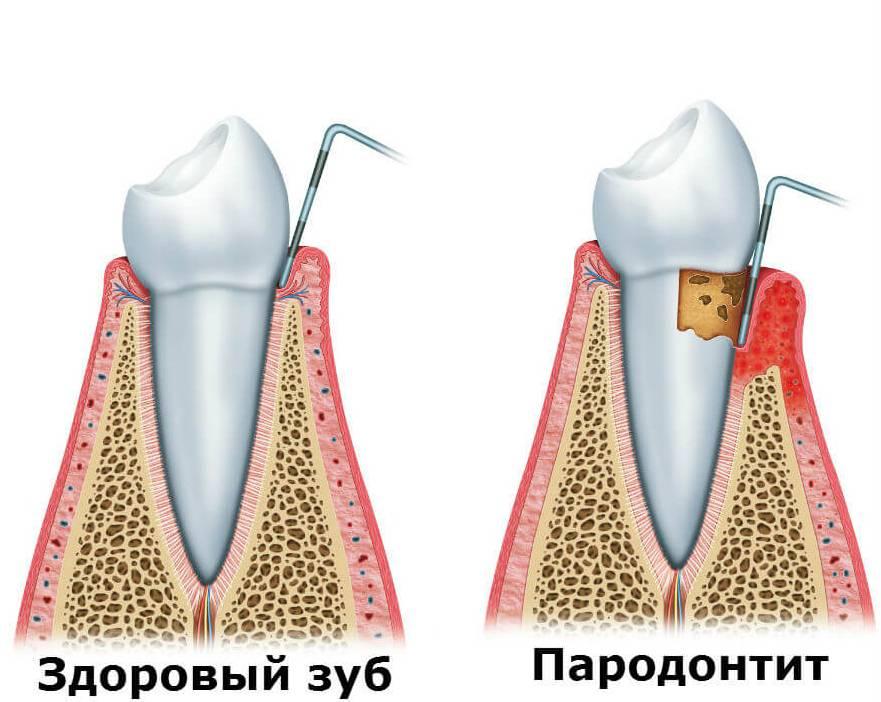 Что делать, если около зуба воспалилась десна, в чем причины появления симптома и какие меры профилактики существуют?
