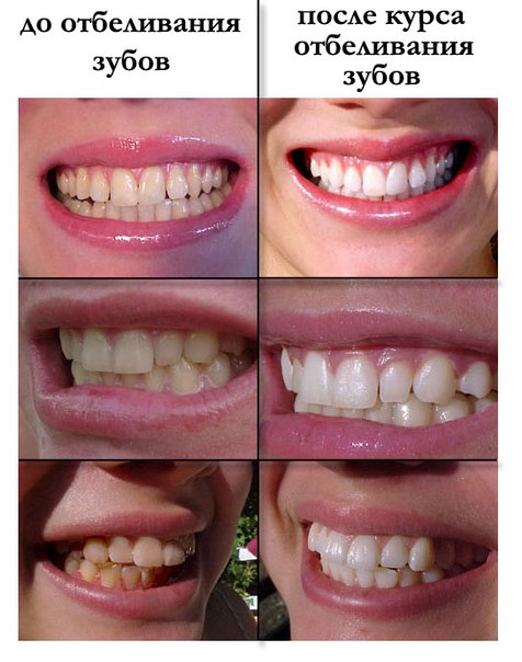 Причины желтизны зубов и способы её устранения