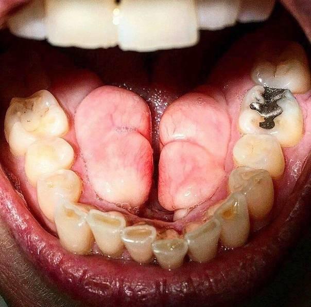 Экзостоз осложнение после удаления зуба: как избавиться от костного нароста на десне?