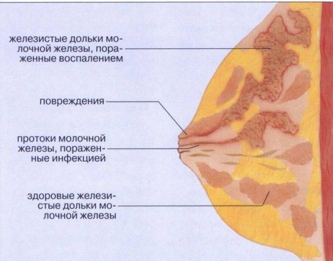 Естественные и потологические причины боли в груди по бокам