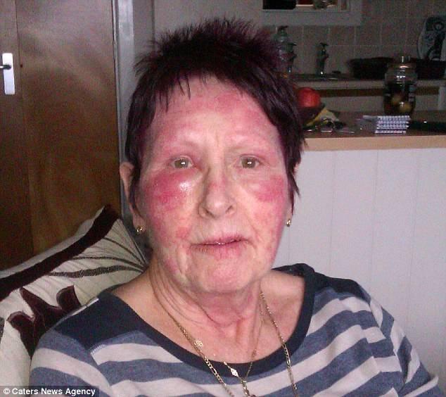 Аллергия на гиалуроновую кислоту в креме симптомы