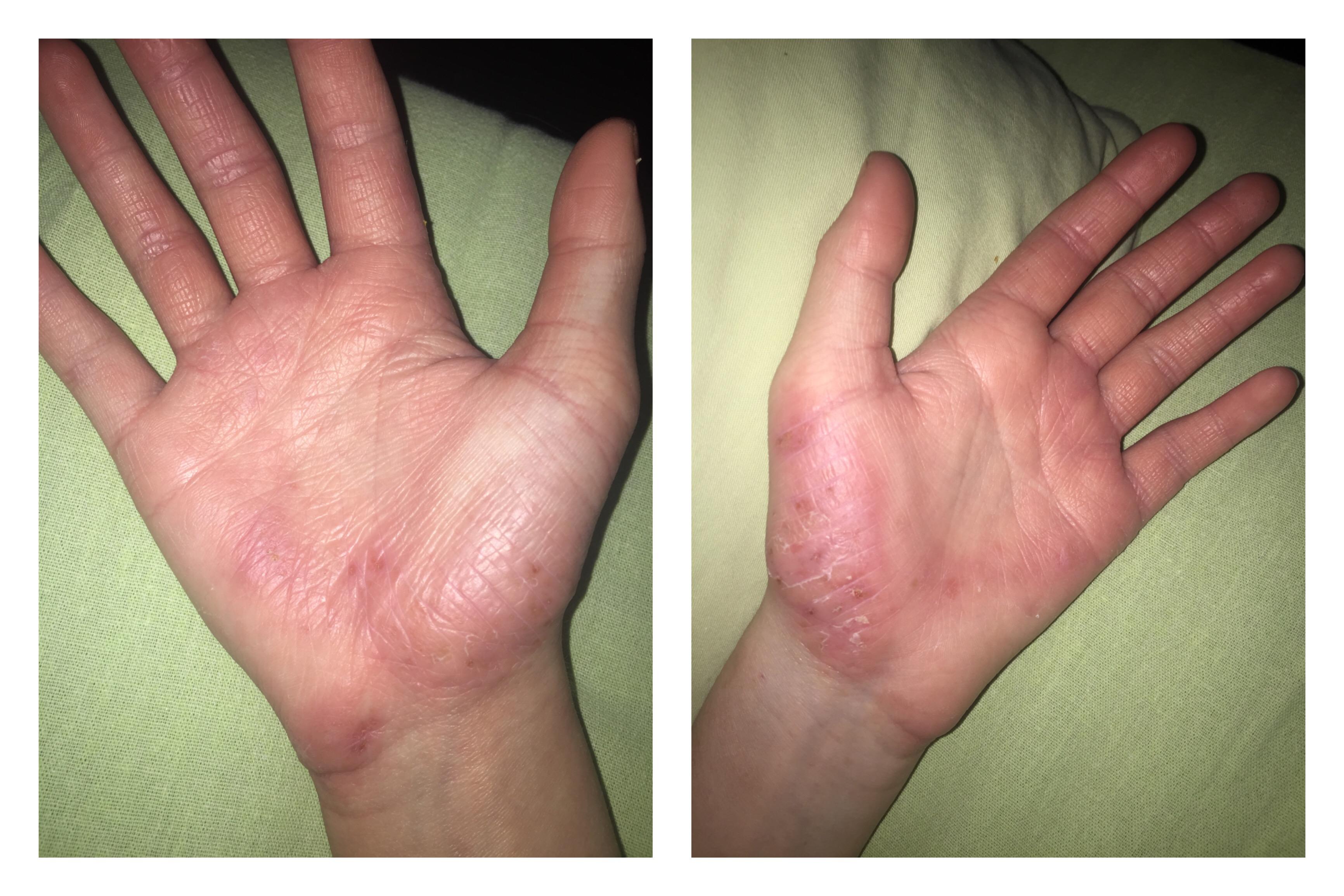 Все об атопическом дерматите у детей и взрослых и его лечении
