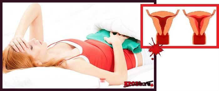 Месячные или кровотечение из матки? 82