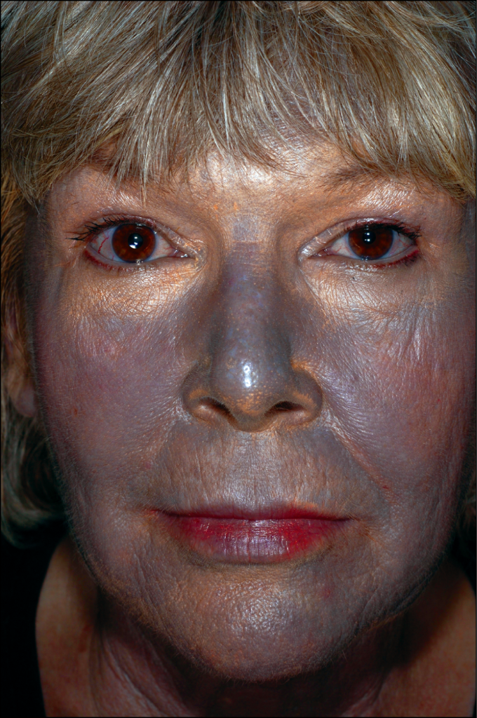 Серый цвет лица. причины у женщин, мужчин, болезни, как избавиться
