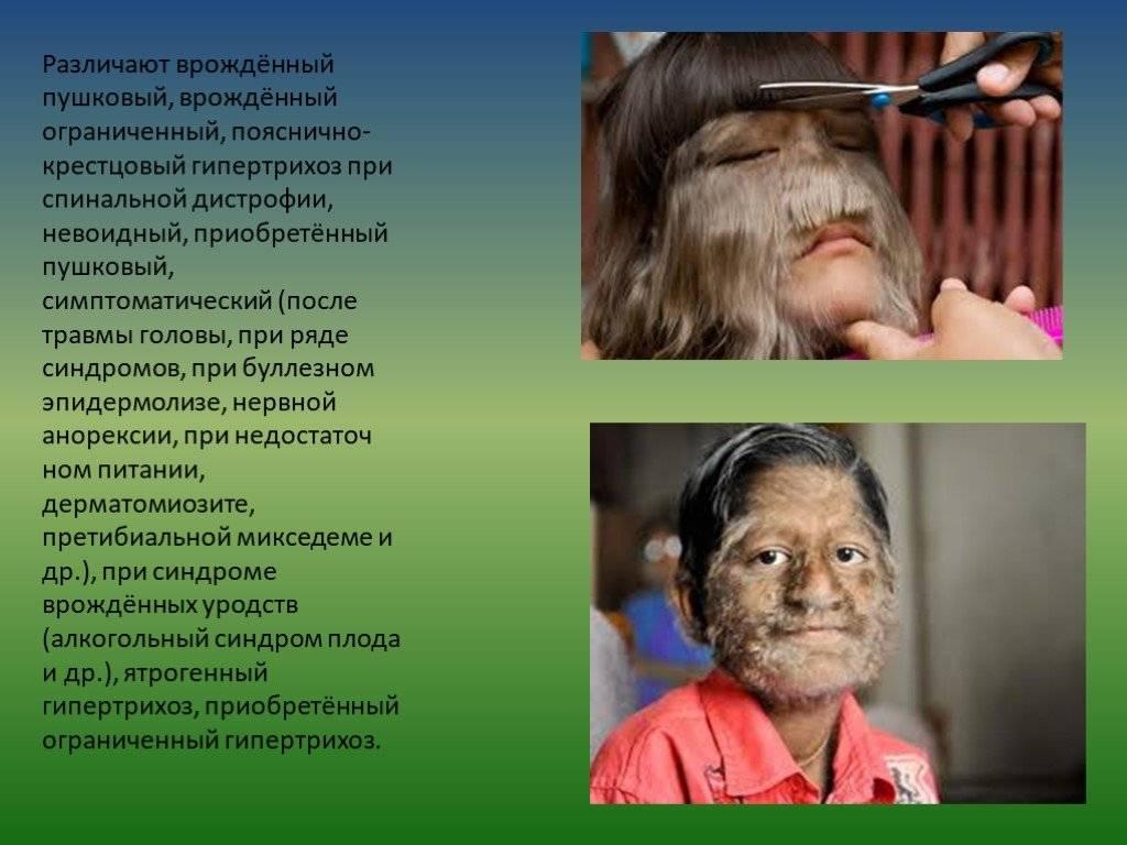 Гипертрихоз: чем опасны лишние волосы