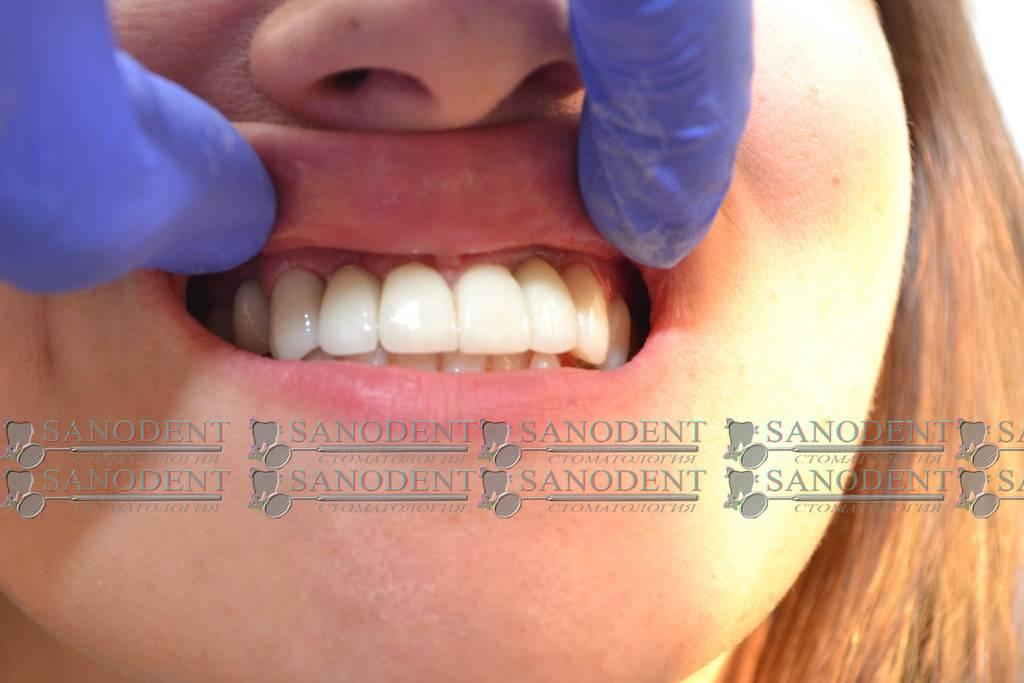 Зазор между коронкой и зубом