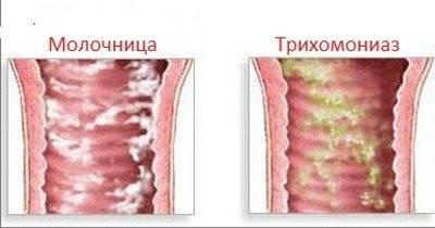 Бактериальный вагиноз: причины заболевания, влияние на беременность, лечение