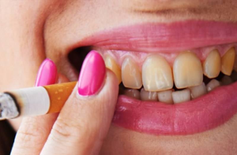 Когда можно курить после имплантации зубов?