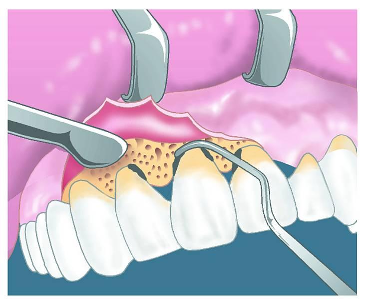 Экзостоз (нарост) на десне после удаления зуба: лечение, фото