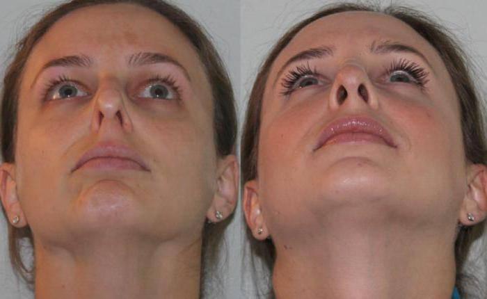 Подслизистая резекция носовой перегородки: особенности операции, последствия и лечение