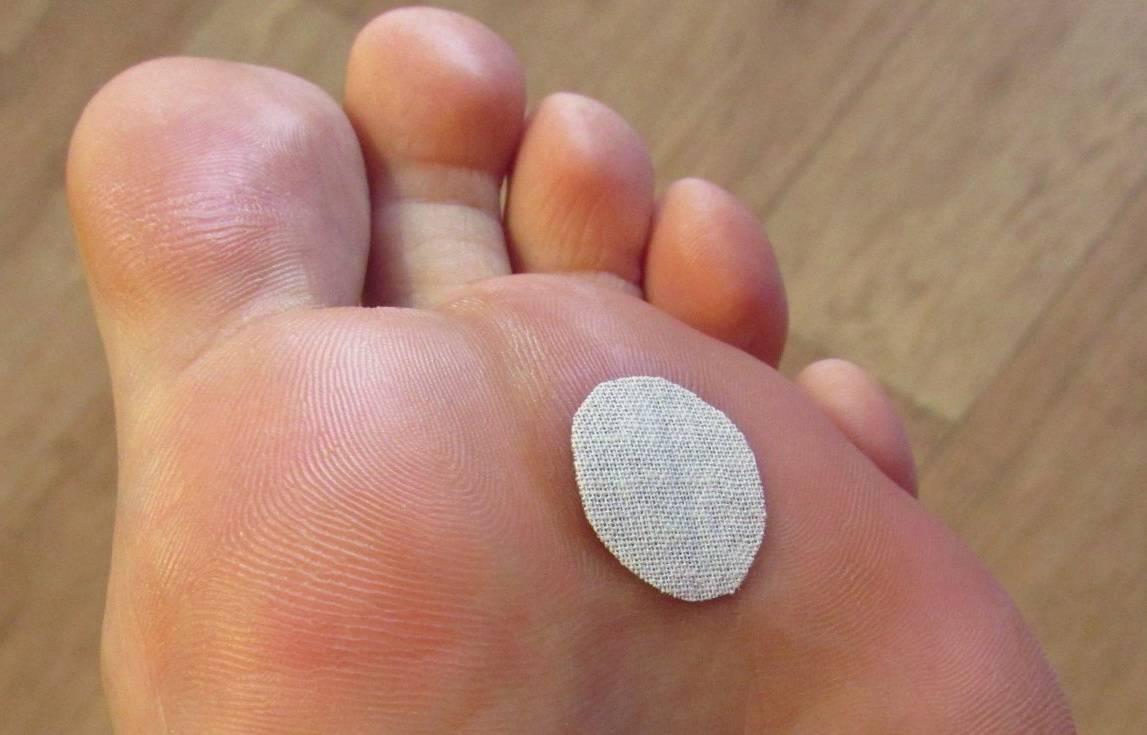 Обзор средств и методов для удаления мозолей на пальцах ног в домашних условиях