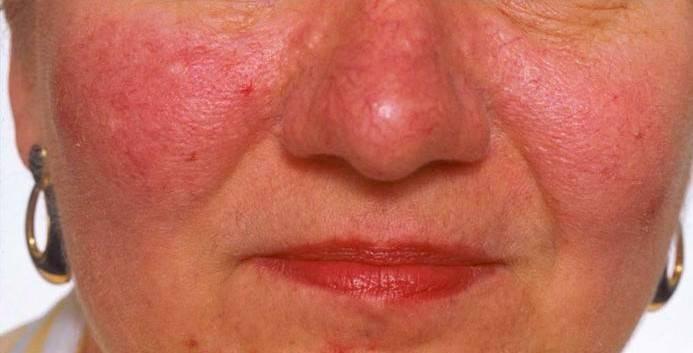 Почему болит кончик носа и что делать?