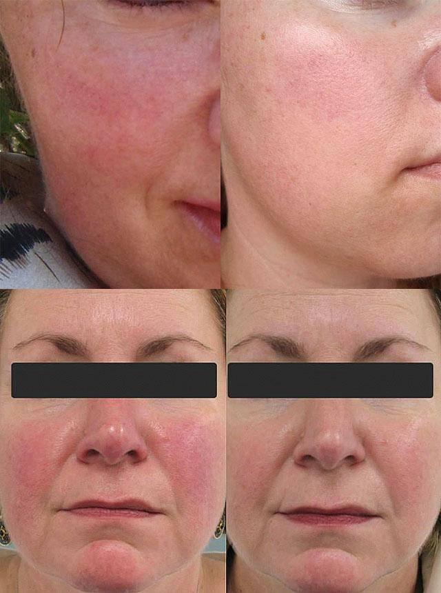 Народные средства для борьбы с куперозом на лице