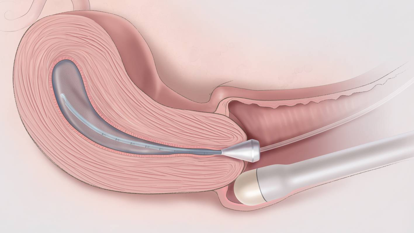 Диагностика проходимости маточных труб: современные методы исследования
