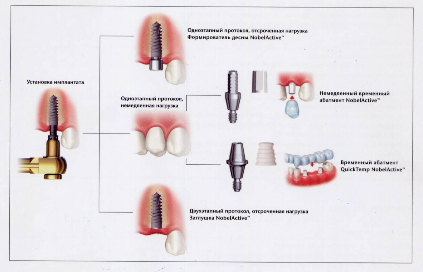 Имплантация зубов: из каких этапов состоит эта процедура