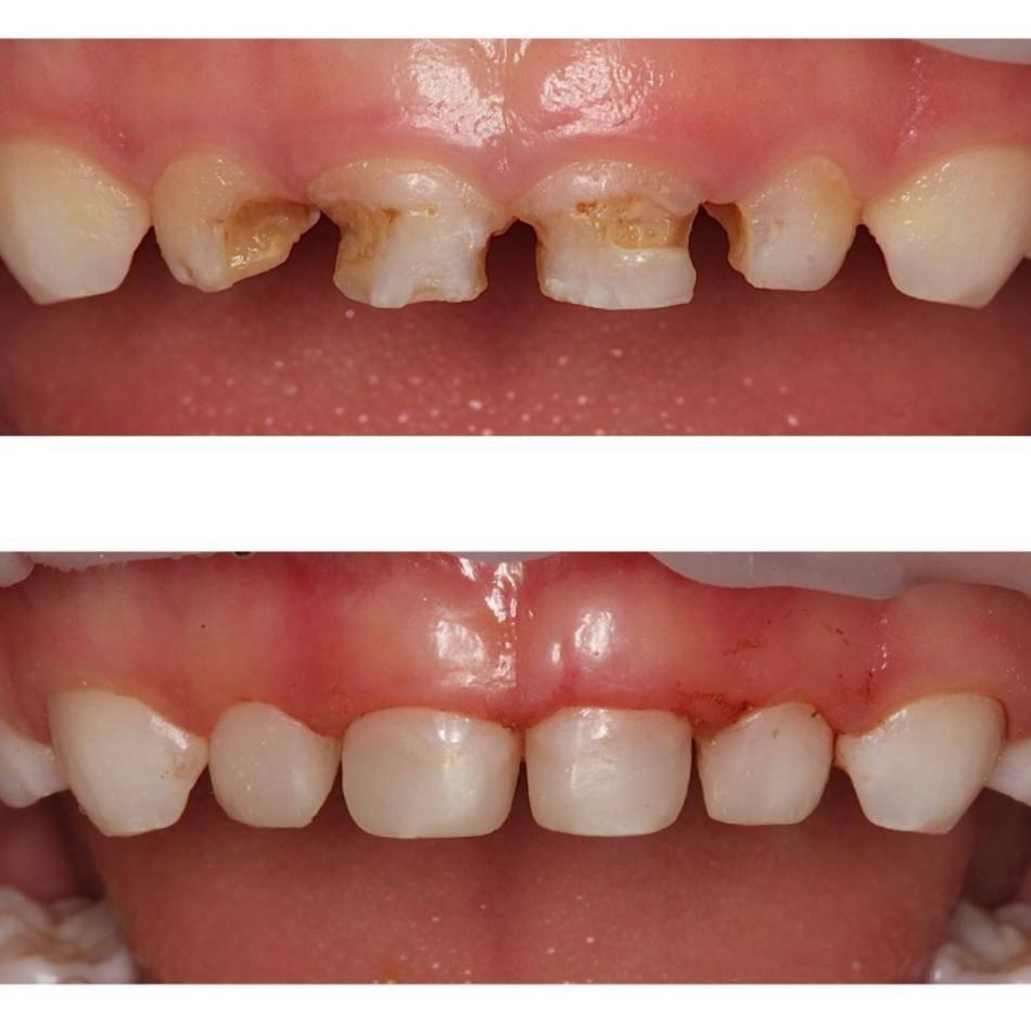 Зуб до полного разрушения кариесом