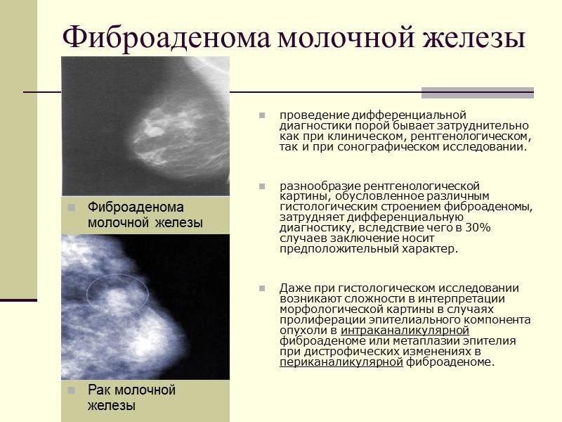 Узлы в молочной железе