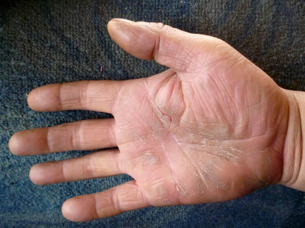Трещины и сухость кожи на руках