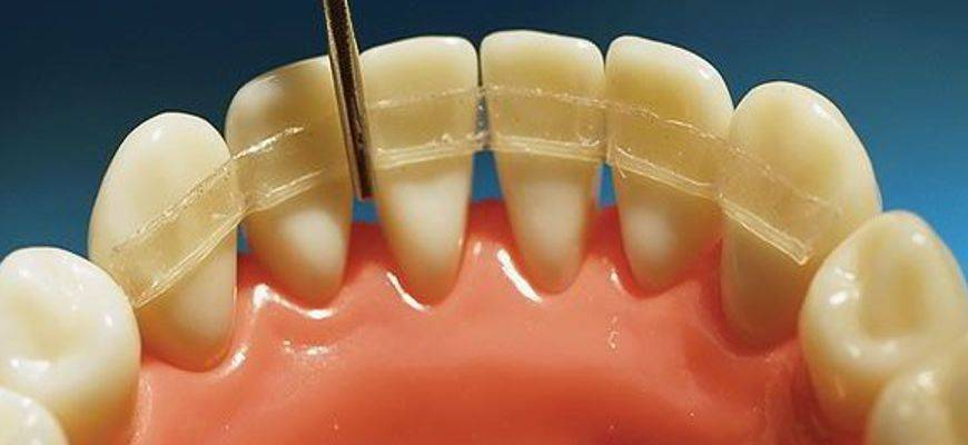 Шинирование зубов, для чего нужно и какие виды применяют