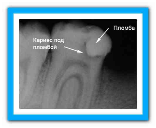 В зубе под пломбой болит нерв: причины, что делать
