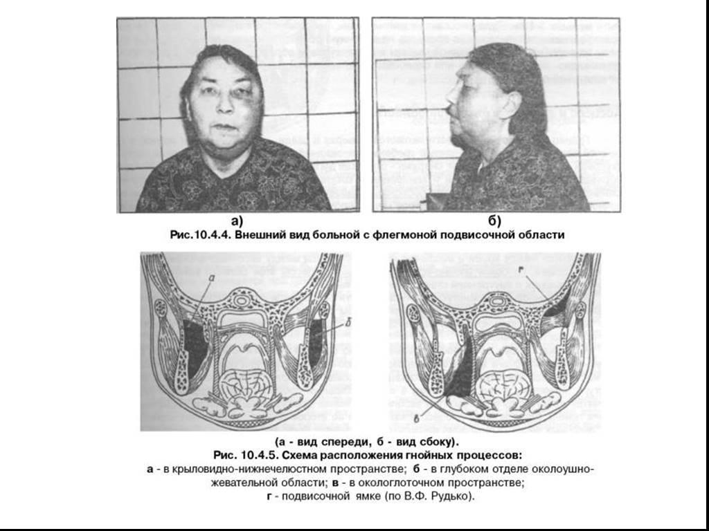 Флегмона крыловидно-челюстного пространства