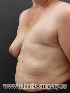 Реконструкция груди после проведения мастэктомии