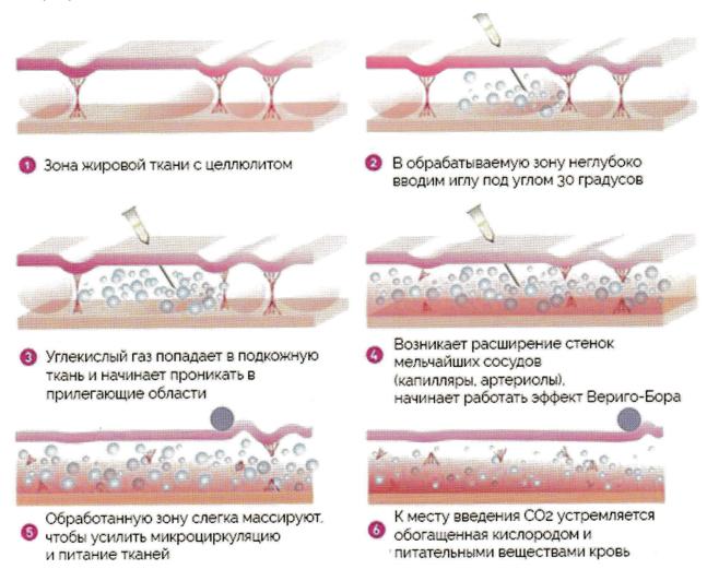 Что такое карбокситерапия и как ставить газовые уколы для лечения спины и суставов