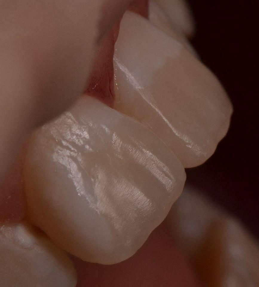 Постэндодонтическая реставрация фронтальных зубов клинический случай велосипедная травма результат через 10 лет