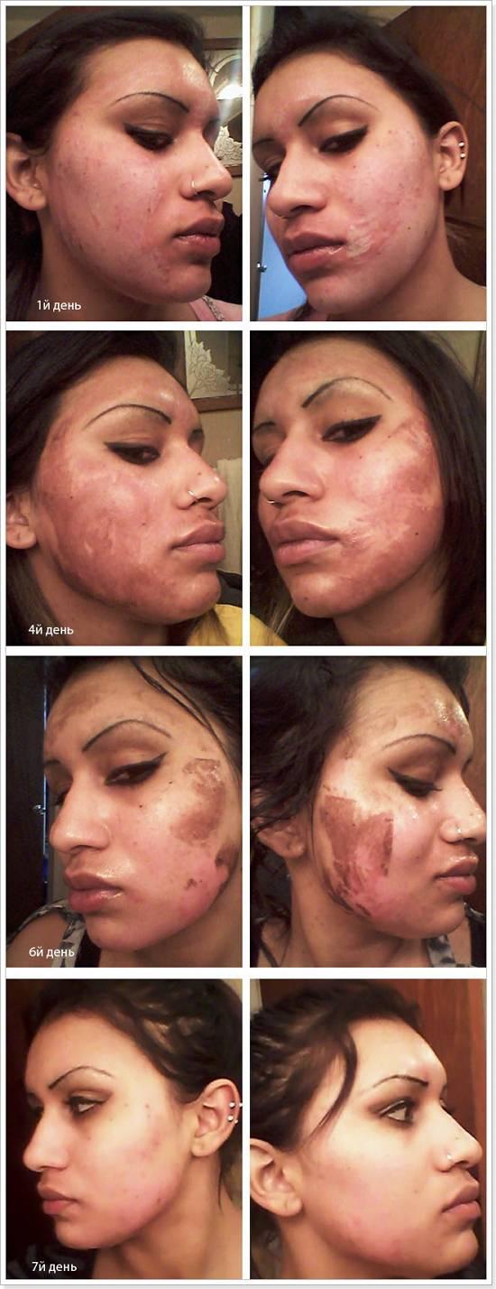 6 пилингов для чувствительной кожи