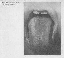 Отпечатки зубов на языке по бокам причины