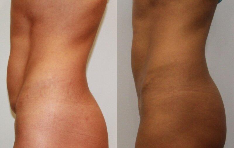 Природный и косметологический липолиз: как умно и просто убрать жир на теле