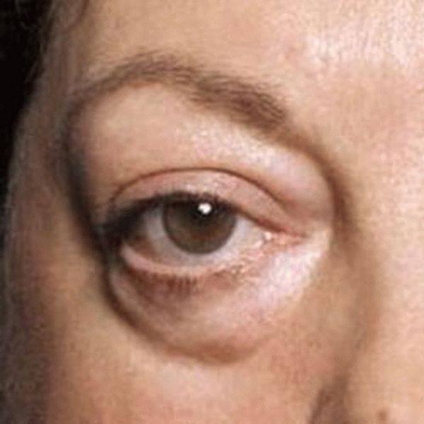 Черные мешки под глазами: причины у мужчин