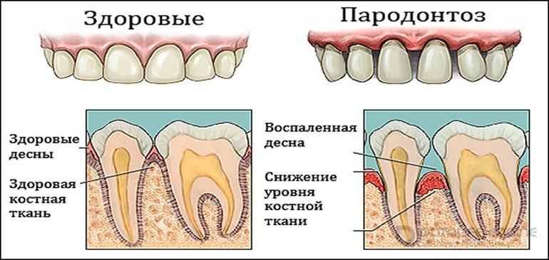 Заболевания зубов и полости рта: основные виды и их профилактика