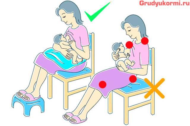 Лактостаз при грудном кормлении: причины и лечение