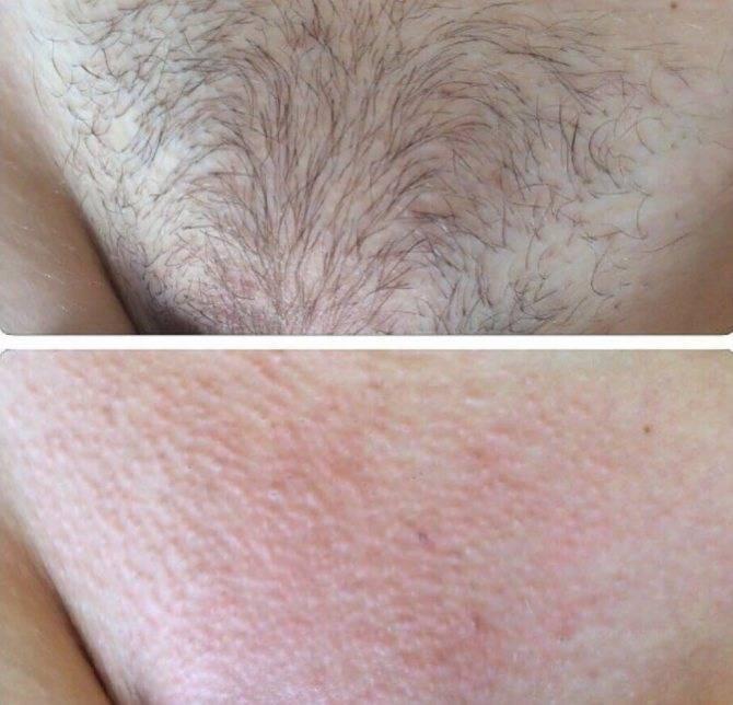 Как бороться с прыщами после бритья