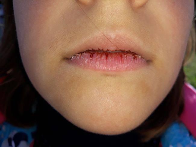Почему сохнут и трескаются губы у женщин – основные причины и что с этим делать?