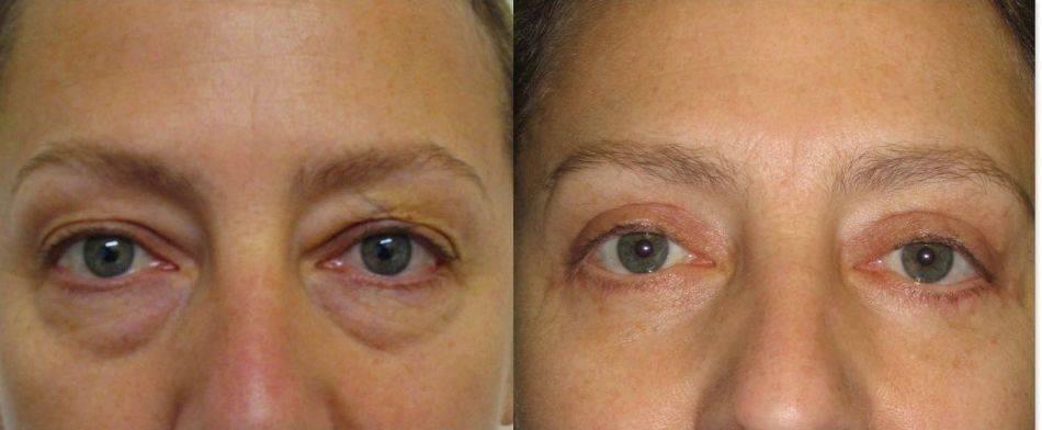Блефарогель от морщин вокруг глаз