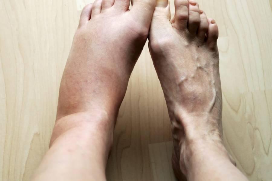 Могут ли отекать ноги при климаксе: причины и симптомы отечности, частота появления симптома и диагностика патологии, методы лечения и снятия неприятных симптомов